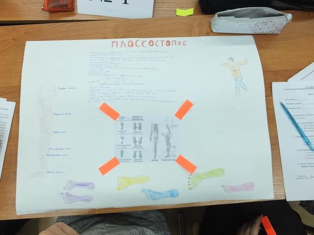 Плакат о плоскостопии созданный в процессе проекта